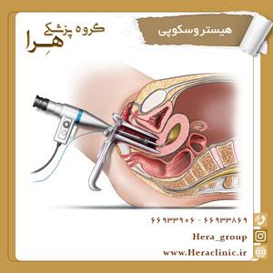 هیستروسکوپی