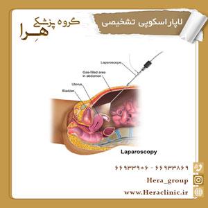 لاپاراسکوپی تشخیصی
