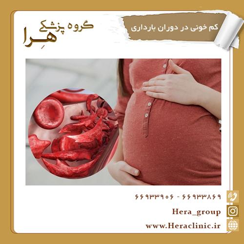 کم خونی در دوران بارداری