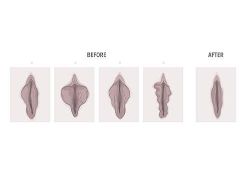 جراحی زیبایی واژن بعد از زایمان چقدر طول می کشد؟